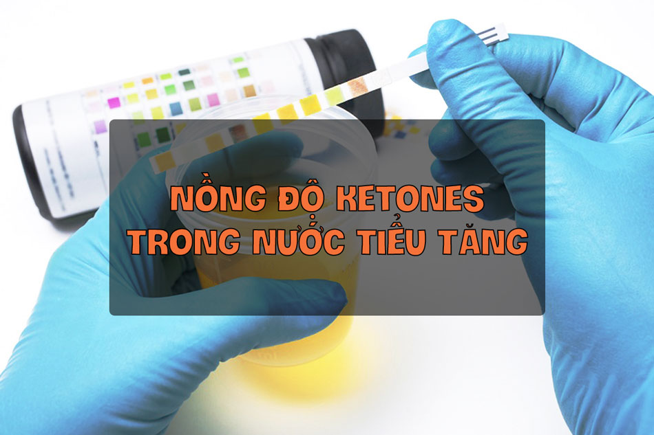 Tăng nồng độ Ketones trong nước tiểu là dấu hiệu của Đái tháo đường thai kỳ